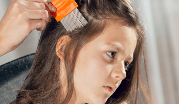 Be Careful When Checking For Lice 2020